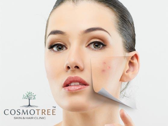 dark-spot-pigmentation-removal